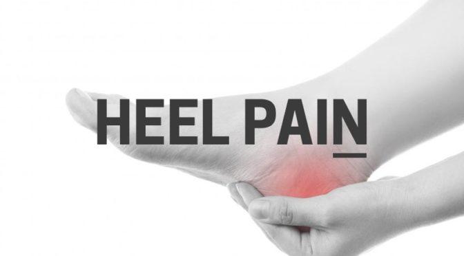 HEEL PAIN (PLANTAR FASCIITIS, HEEL SPUR)