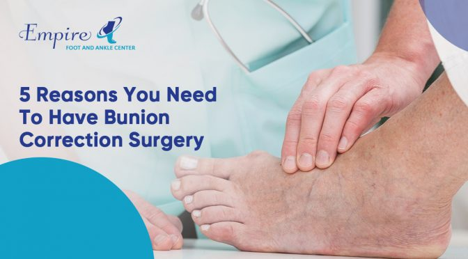 5 Reasons You Need to Have Bunion Correction Surgery