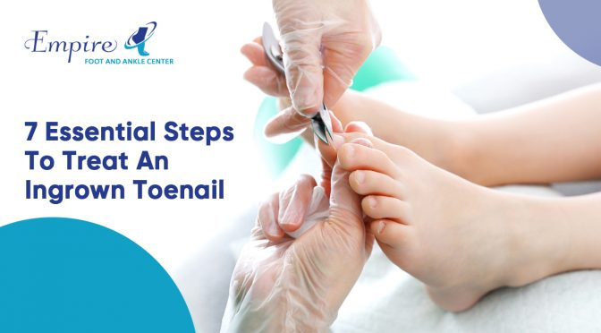 7 Essential Steps To Treat An Ingrown Toenail